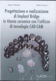 Tecniche Nuove - Progettazione e realizzazione di Implant Bridge in titanio ceramica con l'utlizzo di tecnologie CAD-CAM