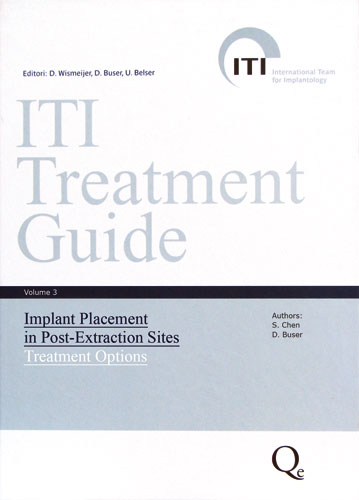 Tecniche Nuove - ITI Treatment Guide. Volume 3