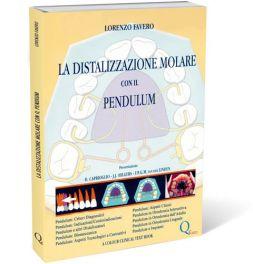 Tecniche Nuove - La Distalizzazione molare con il Pendulum