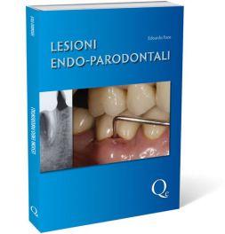 Tecniche Nuove - Lesioni Endo-parodontali