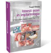 Tecniche Nuove - Innesti ossei in implantologia