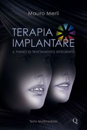 Tecniche Nuove - Terapia implantare: Il piano di trattamento integrato