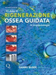 Tecniche Nuove - 20 Anni di Rigenerazione Ossea Guidata
