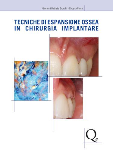 Tecniche Nuove - Tecniche di espansione ossea in chirurgia implantare