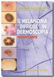"""Tecniche Nuove - Il Melanoma """"difficile"""" in Dermoscopia"""