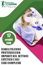 Riabilitazione protesica con impianti nel settore estetico e nei casi complessi