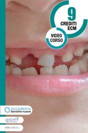 Traumi dentali in età pediatrica
